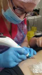 carrie-plasma Fibroblast Skin Tightening