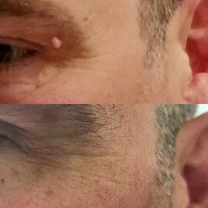 skin tag eye removal