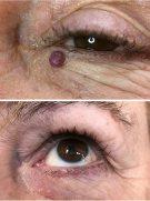 angioma-eye
