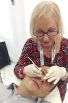 Red Vein, Skin Tag, Skin Lesion Removal