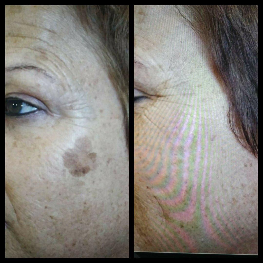 Medical Plasma Fibroblast Skin Tightening