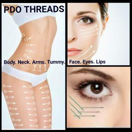 PDO Thread Lifting