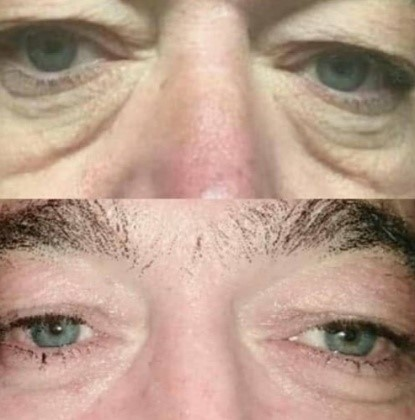 Plasma Fibroblast Skin Tightening Eyes