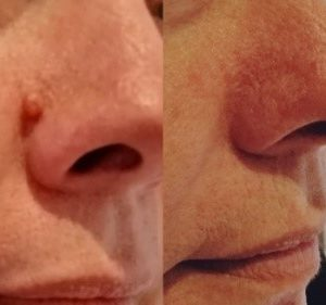Skin Lesion Removal Treatment